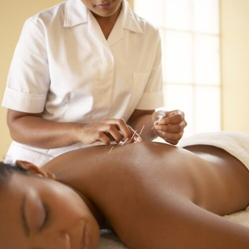 Acupuncture with Myoset